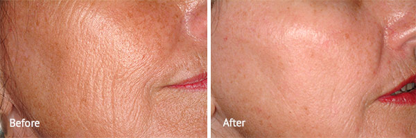 Fractional Skin Resurfacing
